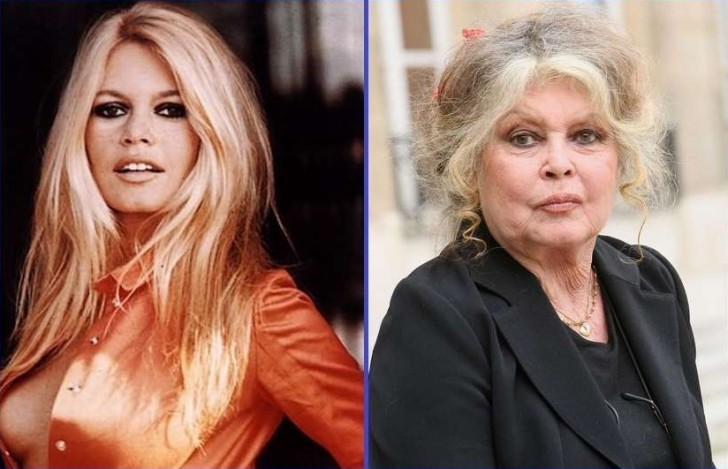 15 Celebrities Who Have Aged the Worst!