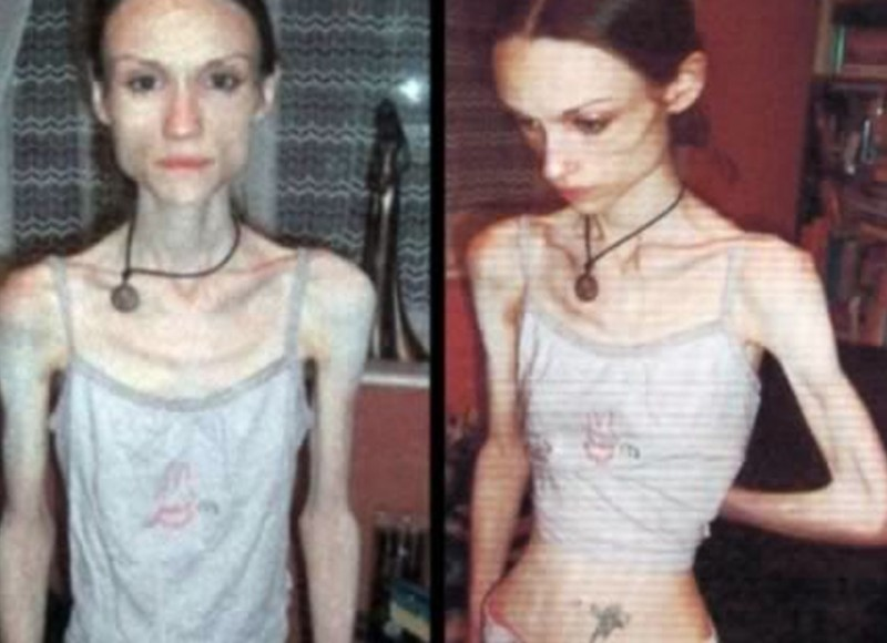 Health: 10 Most Terrible Cases of Anorexia!